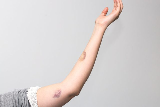Bruises on woman's arm