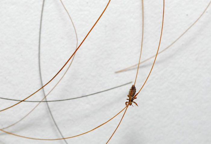 Head lice are tiny insects that live on the skin covering the top human head.