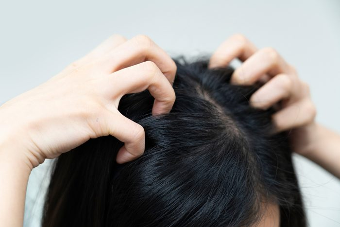 close-up on woman hand scratching her itchyhead and hair