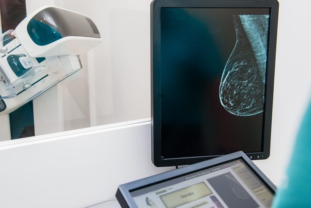 breast mammogram image on monitor