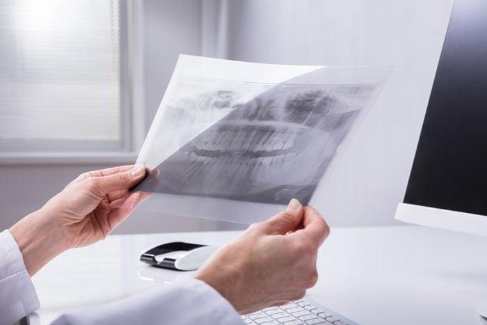 Dentist's Hand Holding Teeth X-ray