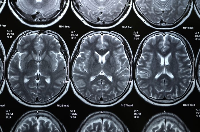 MRI Scaner Film