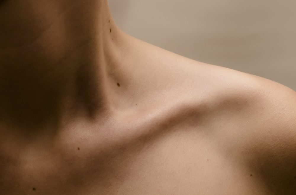 woman's bare shoulder with moles on her skin
