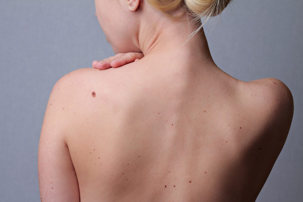 moles on woman's bare back
