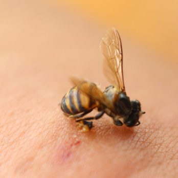 This Is the Most Painful Place to Get Stung by a Bee