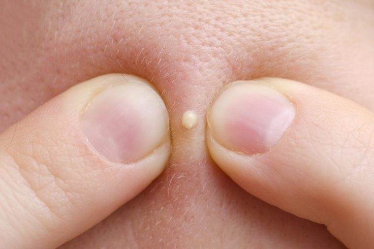 Pus-filled pimple that is about to be popped.