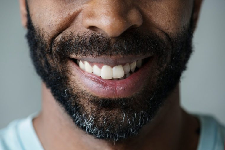Closeup of smiling teeth of a black man