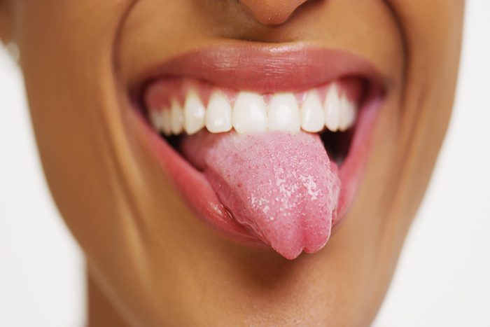 Close up of woman with white teeth smiling and sticking tongue out