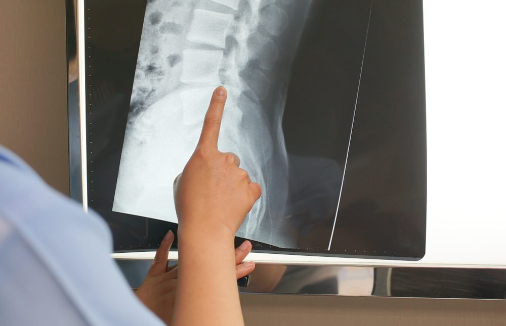 closeup of professional doctor examining x-ray film of patient. medical and healthcare concept.