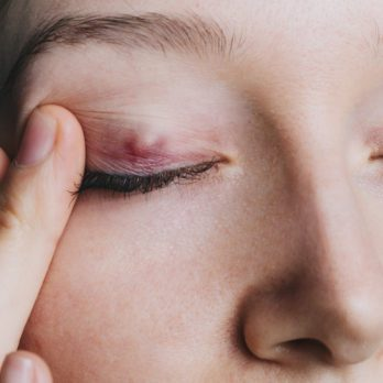 How to Get Rid of a Stye—the Right Way