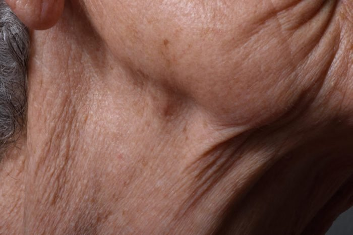 Wrinkles on the chin and neck of an elderly woman.