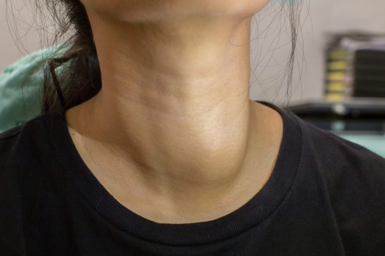What Bumps on Your Neck Really Mean | The Healthy