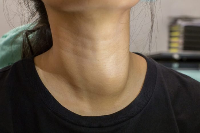 https www thehealthy com skin health what bumps on your neck could mean