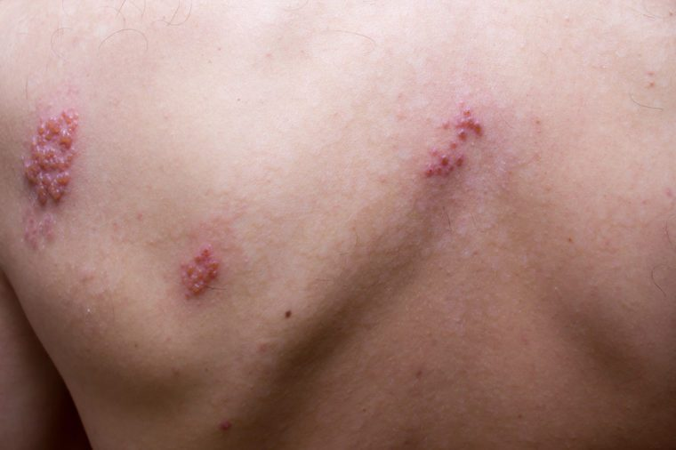 Shingles (herpes zoster) on a man's back.