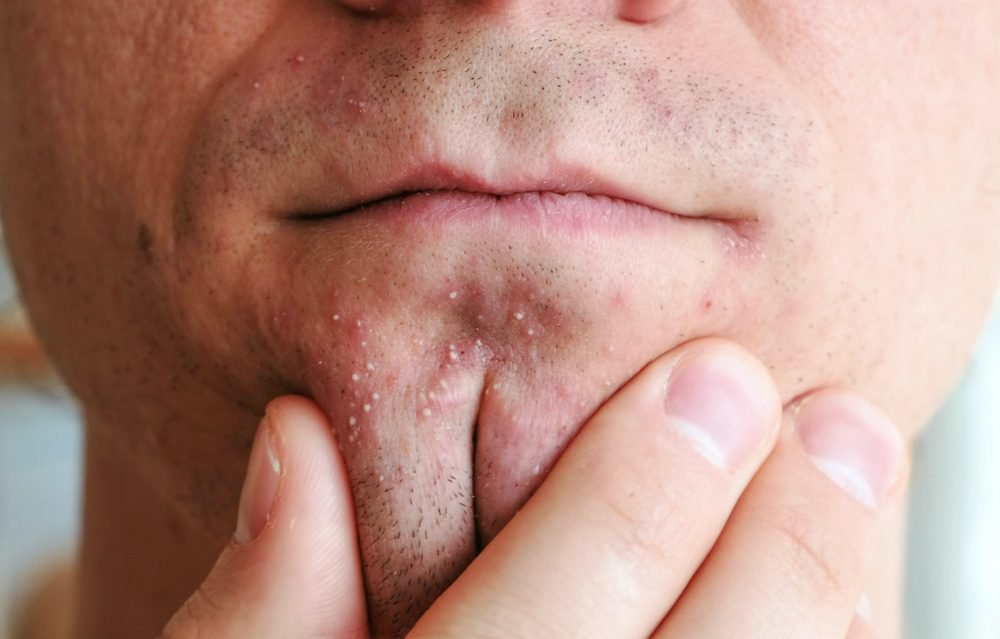 This Is How to Treat Every Type of Acne