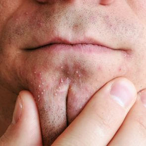 Skin irritation after shaving. Man's hands squeeze pimples on the chin. Closeup chin, lips.