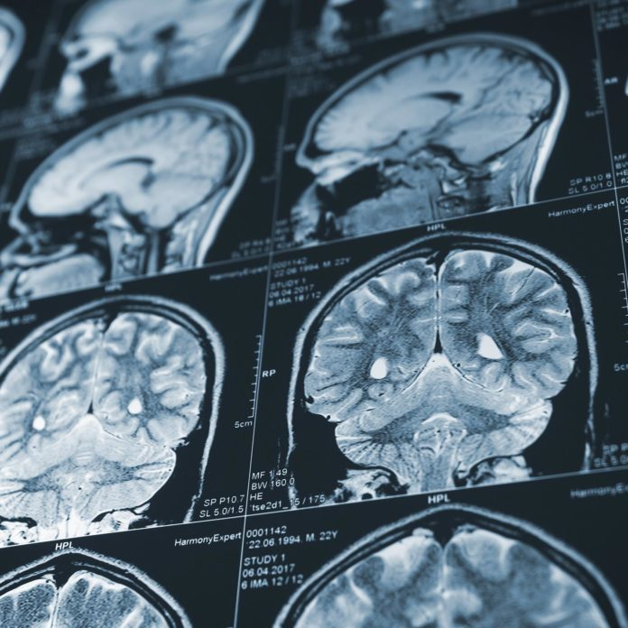 1.1 Billion Millennials Are at Risk for a Condition Linked to Dementia