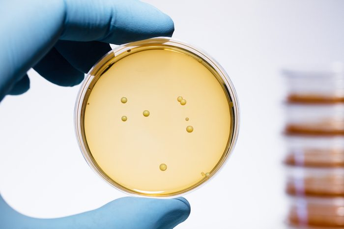 Lactobacillus bacteria colonies. A gloved hand holding a Petri dish that contains Gram-positive lactobacillus bacteria grown on agar. Lactobacillus is a common yogurt probiotic.