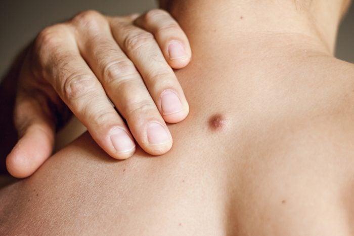 Fibroma on man's back