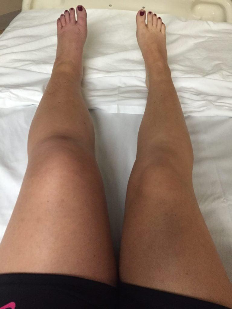 swollen legs