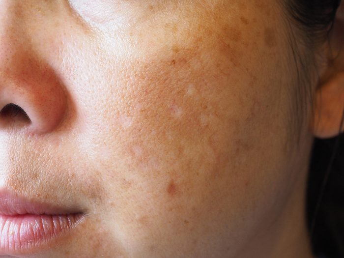 woman's cheek with skin issues