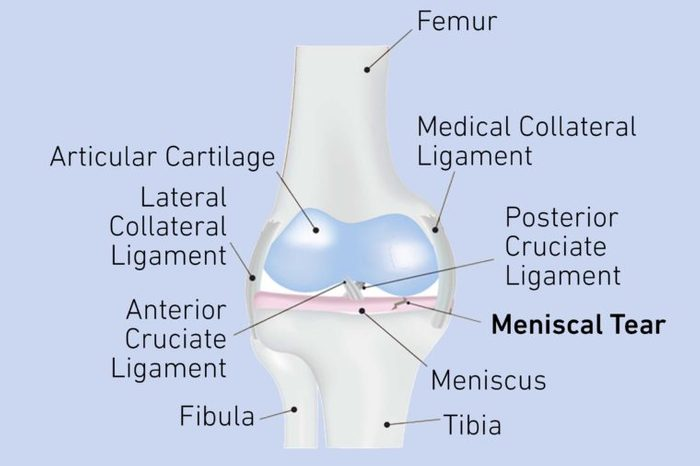 Image of a knee joint with a meniscus tear.