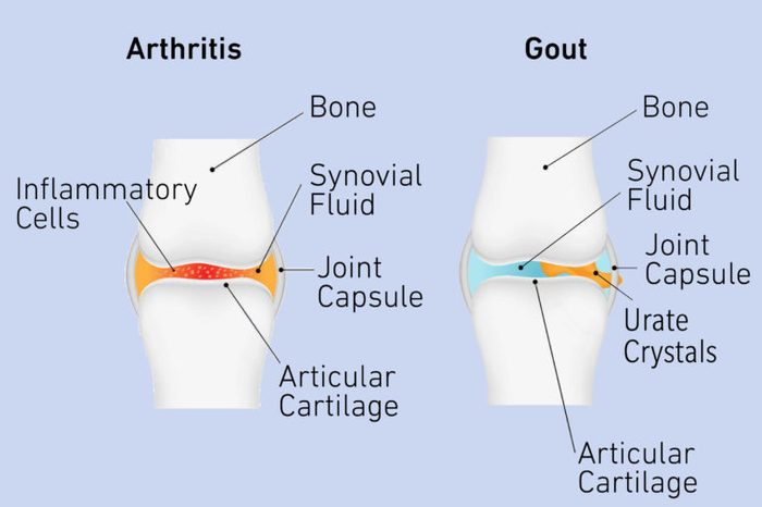 arthritis and gout pain behind knee diagram