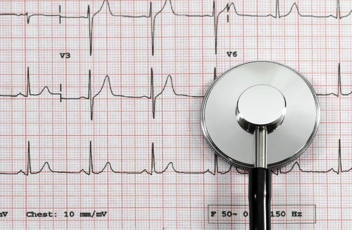 Top view of stethoscope on EKG graph or electrocardiogram to test measures the electrical signals that control heart rhythm.