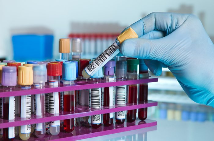 hand of a lab technician taking a tube of blood from a rack and the background color tubes with samples from other patients/ hand of laboratory technician holding a blood tube for analysis