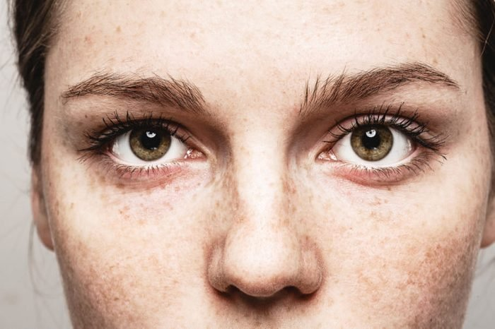 closeup of freckled womans eyes and face