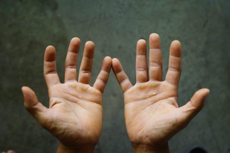 closeup of open hands overhead view