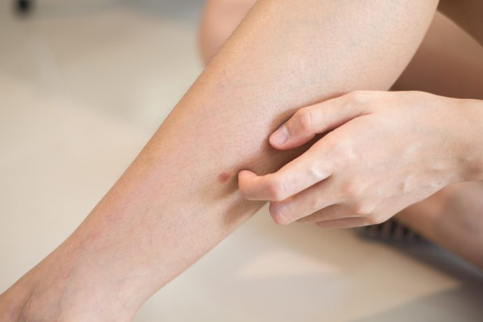 Woman hand scratching on leg, Concept with Healthcare And Medicine.