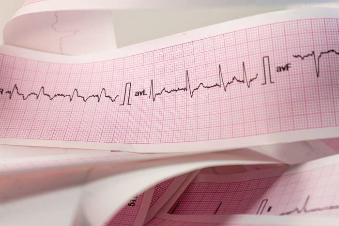 Strip an electrocardiogram. Record of heartbeats.