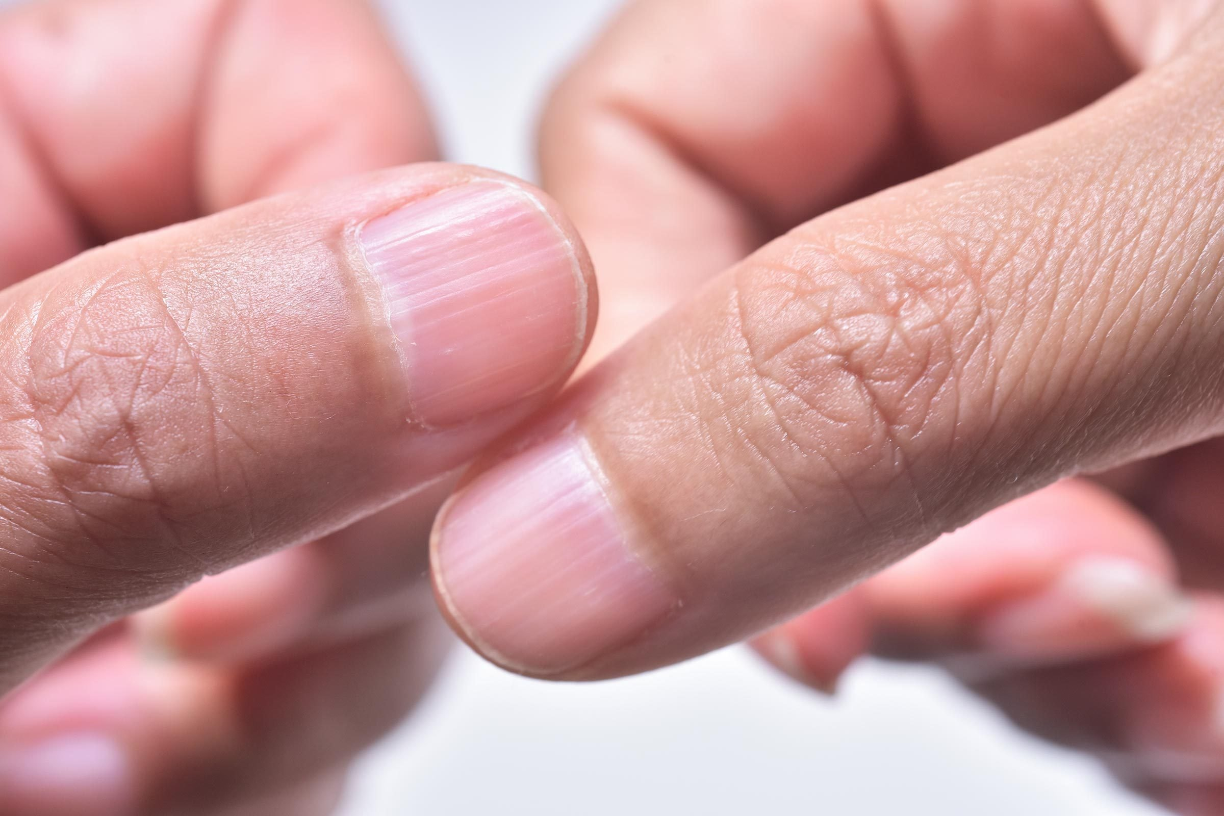 Ridges in Fingernails What It Means if You Have Them   The Healthy