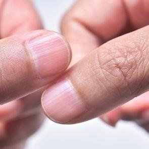 nails nail hands ridges