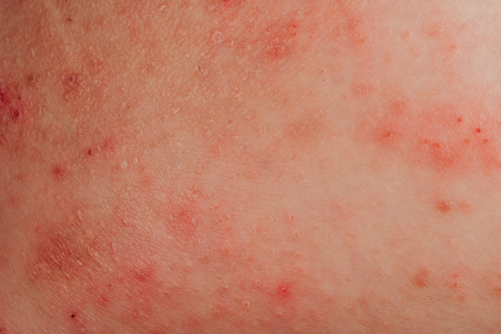 eczema allergy on skin