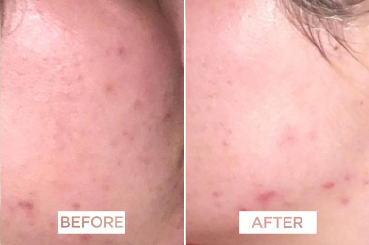 Spironolactone For Acne How I Cured My Cystic Acne In 3 Weeks