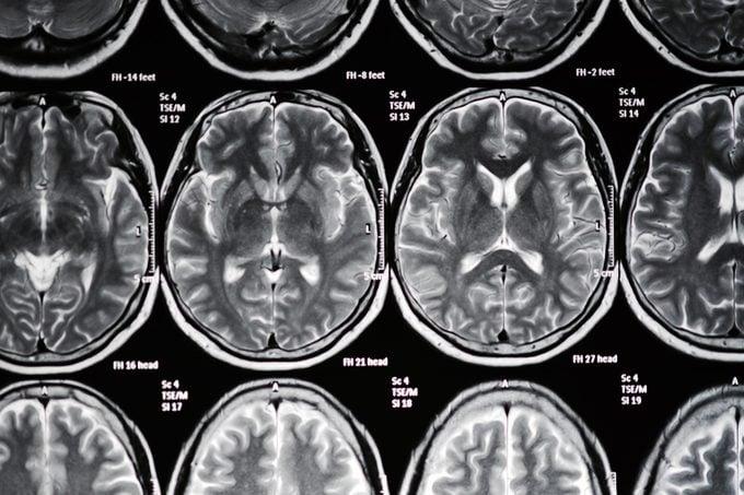 brain scan mri stroke