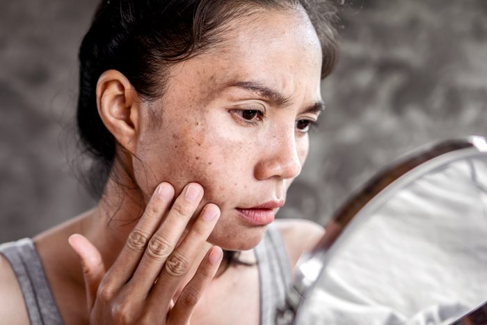 woman looking at sun damage on face