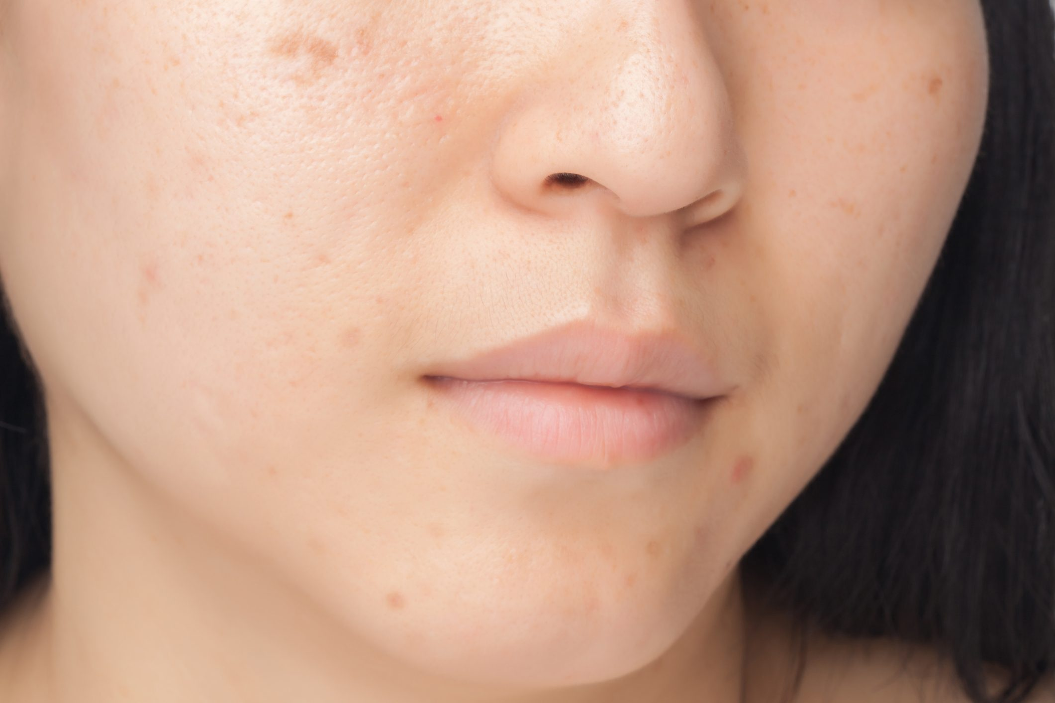 close up of woman's face with spots