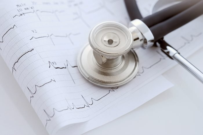 close up of stethoscope and heart scan