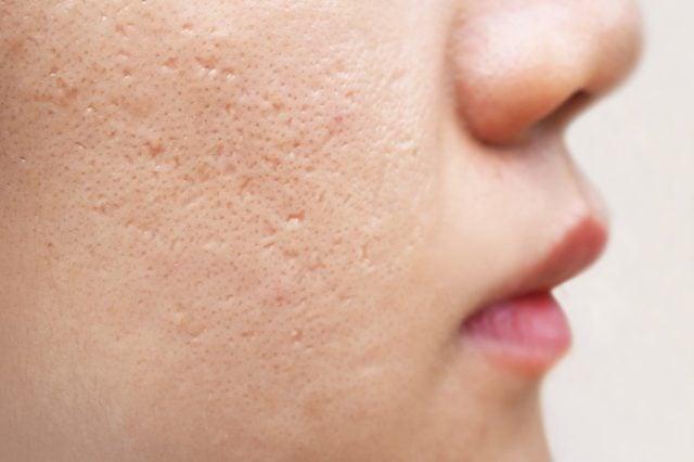 acne scars on woman's cheek