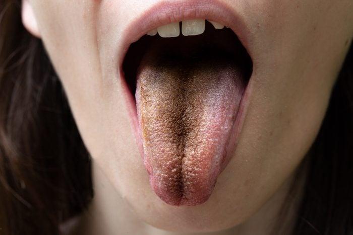 Black tongue, clinical case of lingua villosa