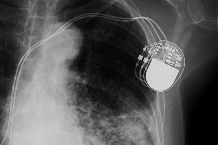 x-ray image of permanent pacemaker implant in body chest.