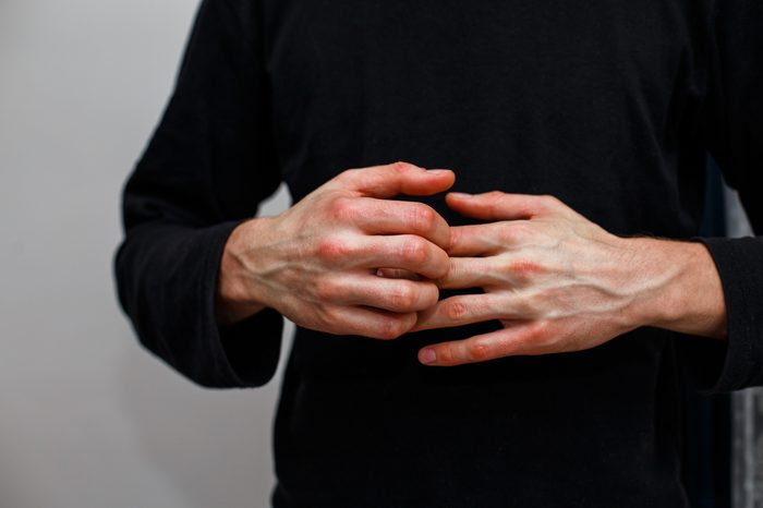 man scratching itchy hands, psoriasis
