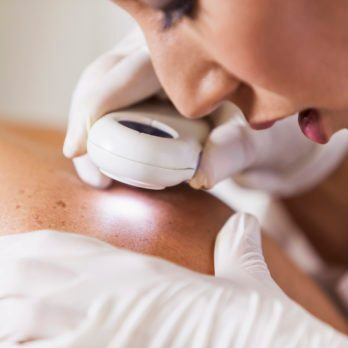 7 Skin Cancer Symptoms You Should Check For Now