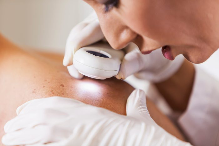 dermatologist examining patient for skin cancer