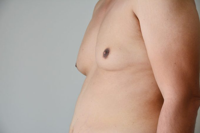 gynecomastia man chest boob