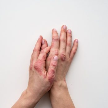 How I Treat My Psoriasis: 8 Tips and Tricks Real People Use