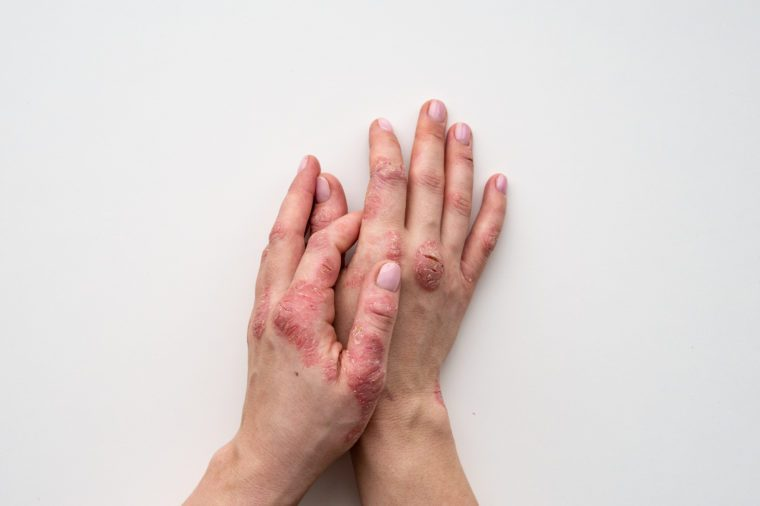 Psoriasis skin. Closeup of rash and scaling on the patient's skin. The concept of chronic disease treatment. Dermatological problems. Hard, horny and cracked skin in woman's hands. Dry skin. Isolated